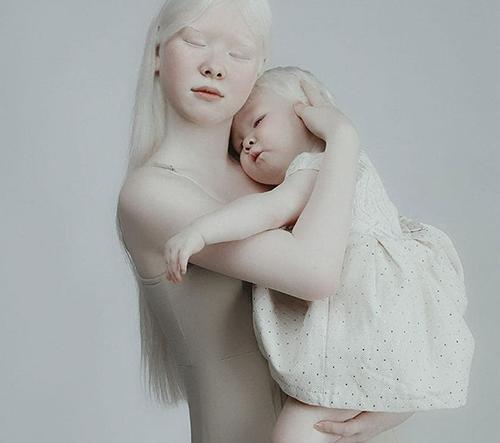 Sestry narozené jako albíny uchvacují svou neobyčejnou krásou